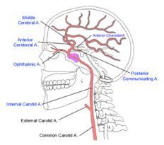 catoid artery